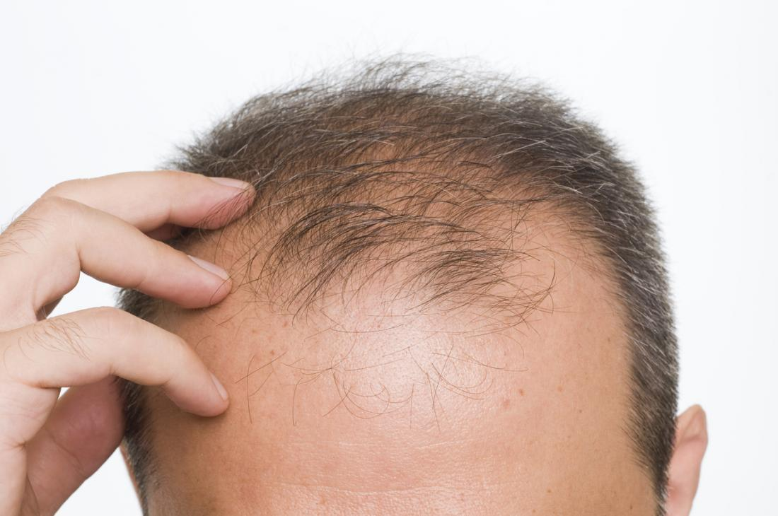 All You Need To Know About Finasteride For Hair Loss